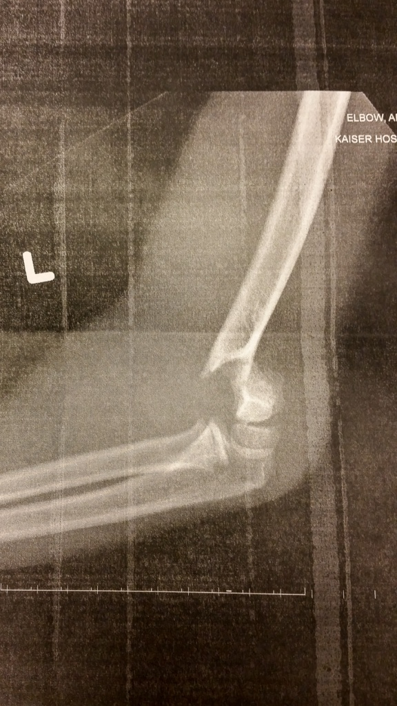 an x-ray of a broken humerus